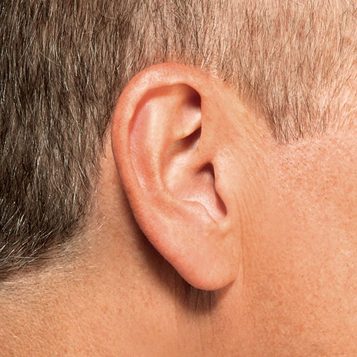 Invisible hearing aid in ear